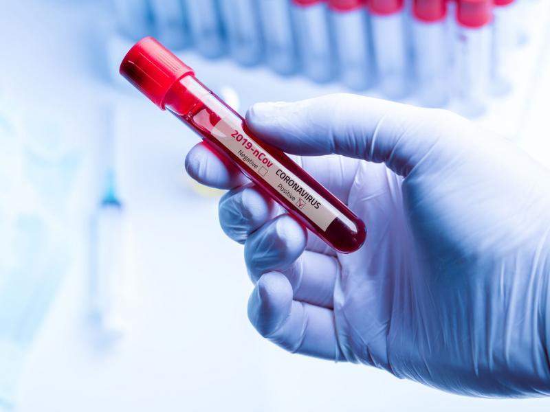 Test sierologici per il Covid-19 a domicilio con Forme